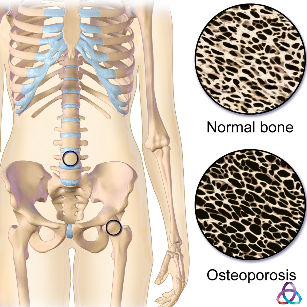 Osteoporosis – The Facts!