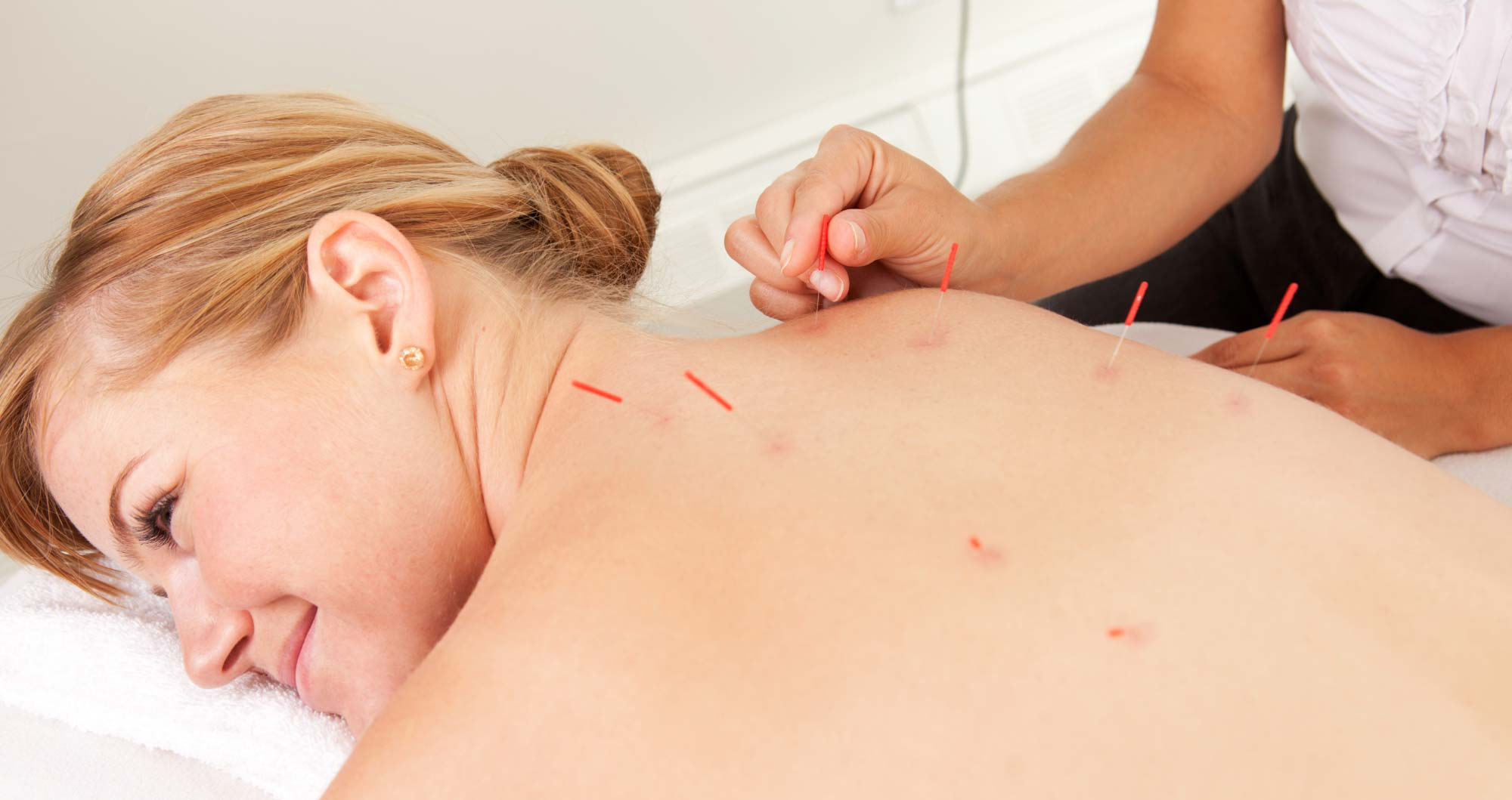 What is the difference between Acupuncture and Dry needling?
