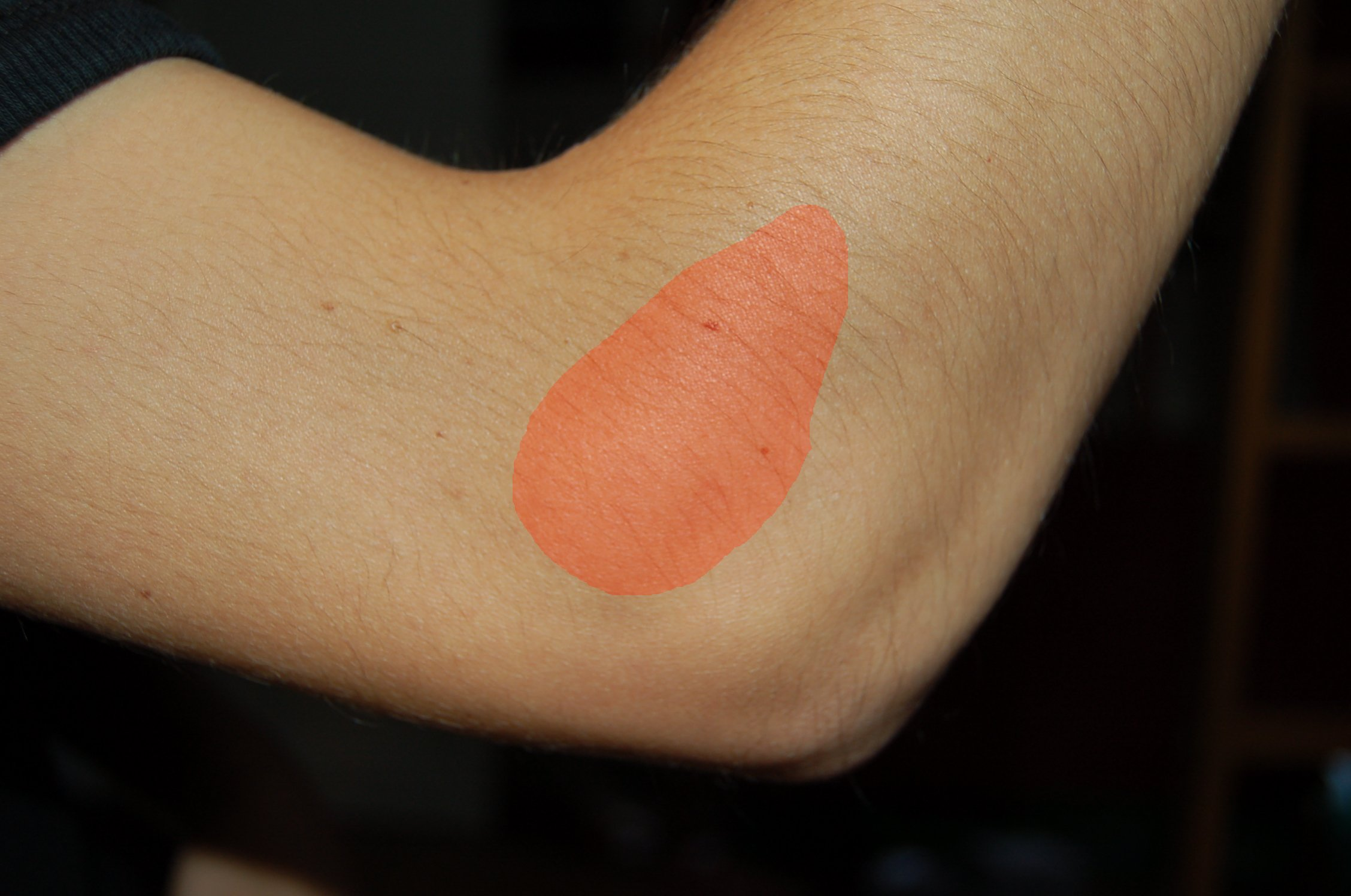 Tennis Elbow……Not just for tennis players!